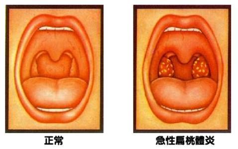 急性化脓性扁桃体炎:记住这3个要点就能搞定